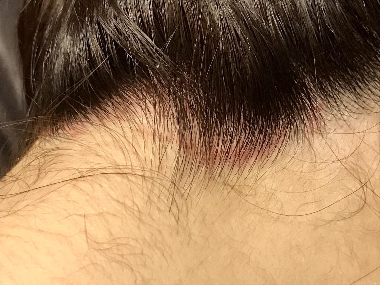 前髪の産毛が長いのが気になる人のための処理方法と注意点