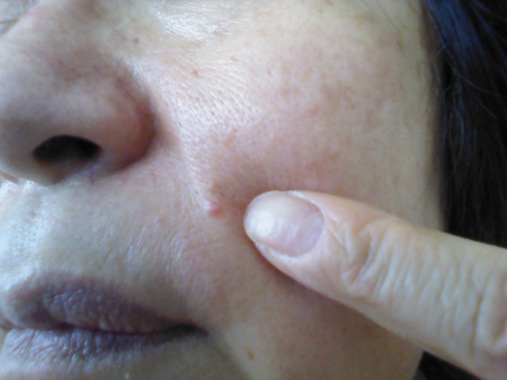 小鼻の角栓はピンセットで抜かない!角栓の正しい除去とケア方法