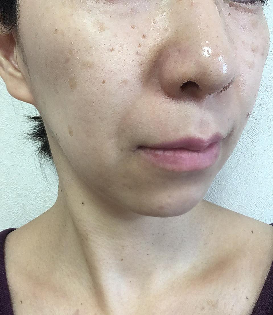 鼻の毛穴の角栓を押し出すコツや知っておきたい注意点やケア方法