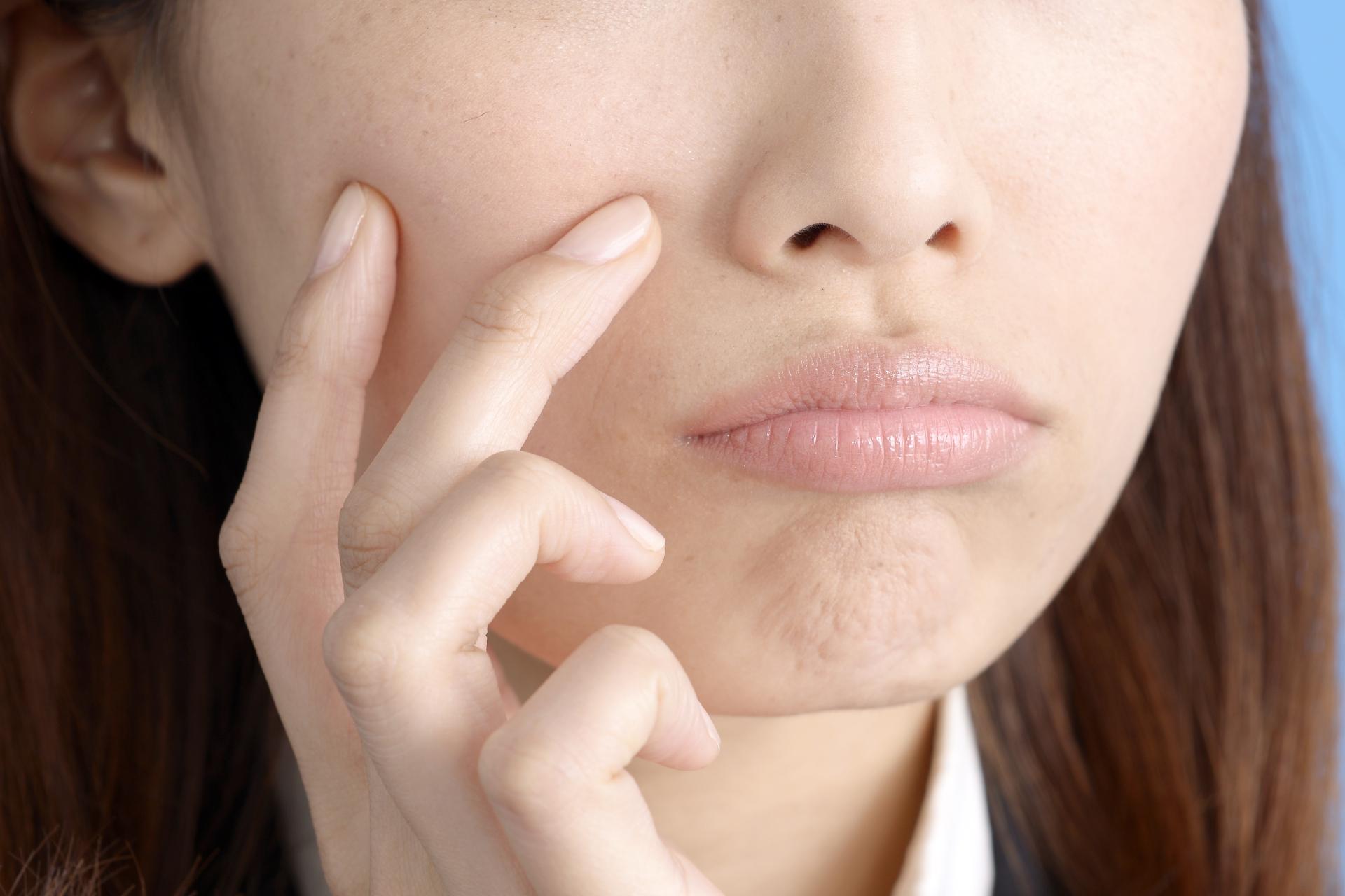 彼氏に肌荒れを指摘されてショック!肌荒れの原因と改善・予防策